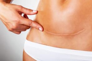 Cirurgia Plástica - Cicatrização por Dr Fernando Ayres