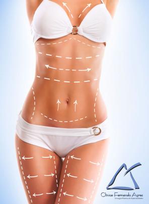 Cirurgia Plastica - Como o pós operatório interfere no resultado das Cirurgias Plásticas - Fernando Ayres 2